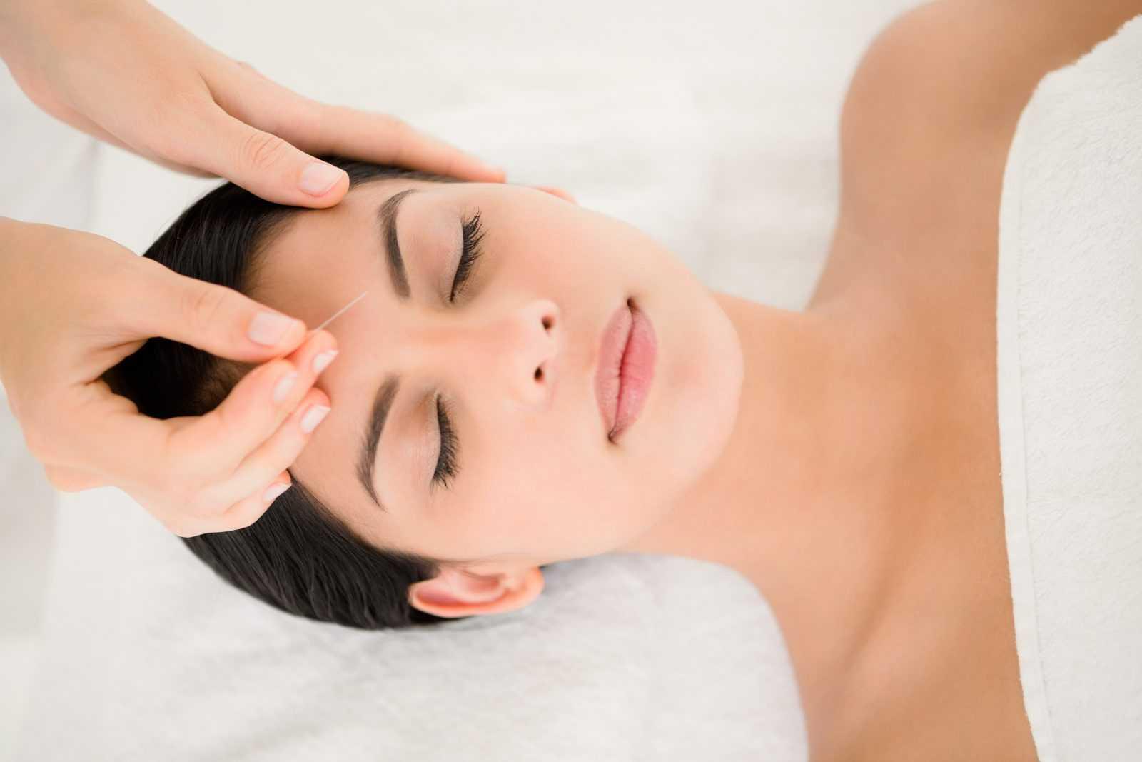 une femme en séance d'aculifting (lifting par acupuncture du visage)