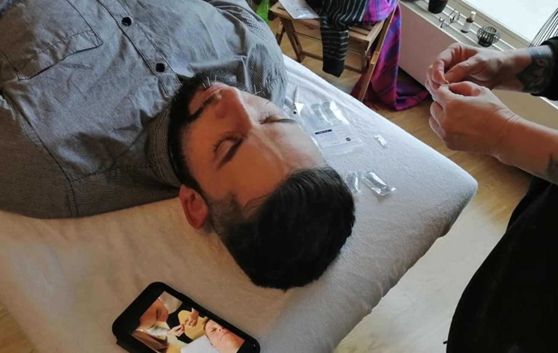 séance d'aculifting sur un homme
