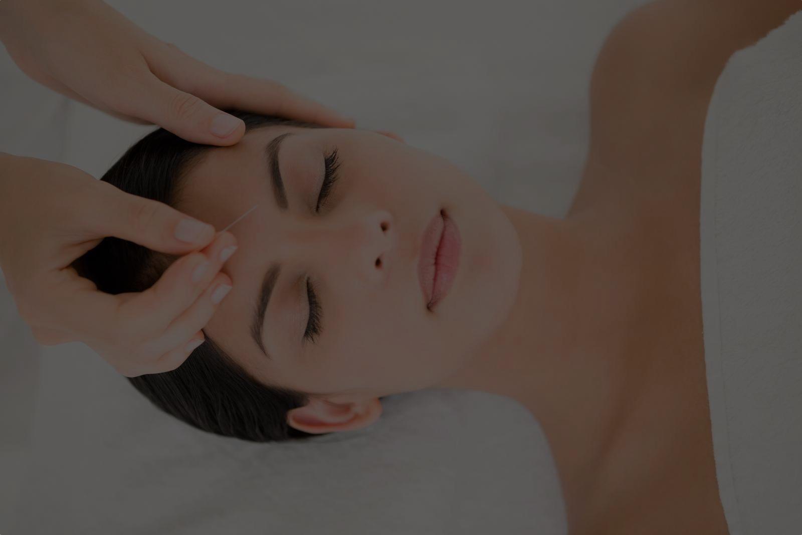 Lifting par acupuncture : formation en ligne à l'aculifting du visage