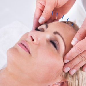 lifting acupuncture