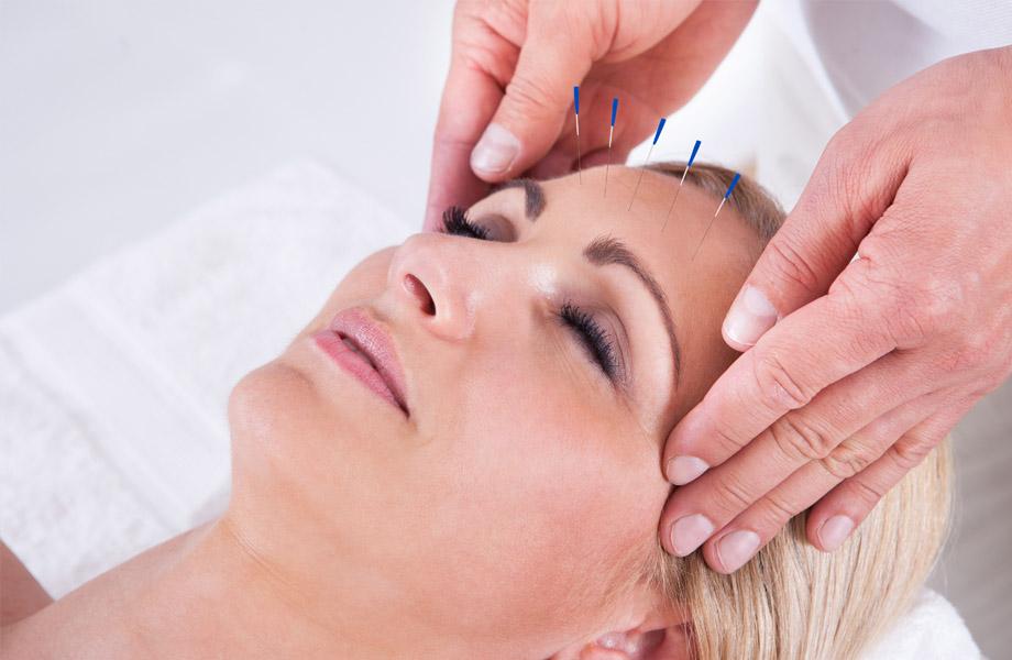 Le lifting par acupuncture
